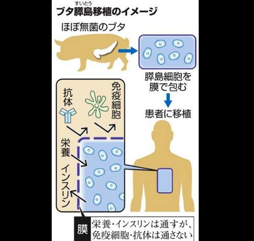 ブタ細胞、人に移植容認へ・・・こんなことして健康になれるの???