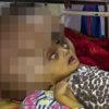 【閲覧注意】世界最大の頭部をもつ「水頭症」の赤ちゃん(インド)
