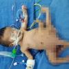 【閲覧注意】ポリメリアという病。8本足で生まれたイラクの赤ちゃんの話。
