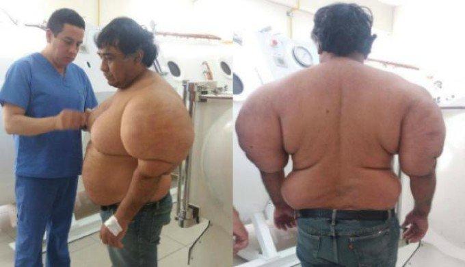 減圧症 ペルー 漁師