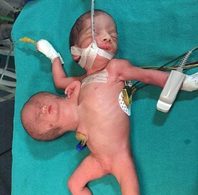 インド 赤ちゃん 奇形