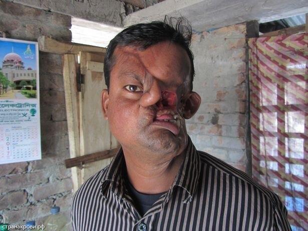サメ 顔面 バングラディッシュ