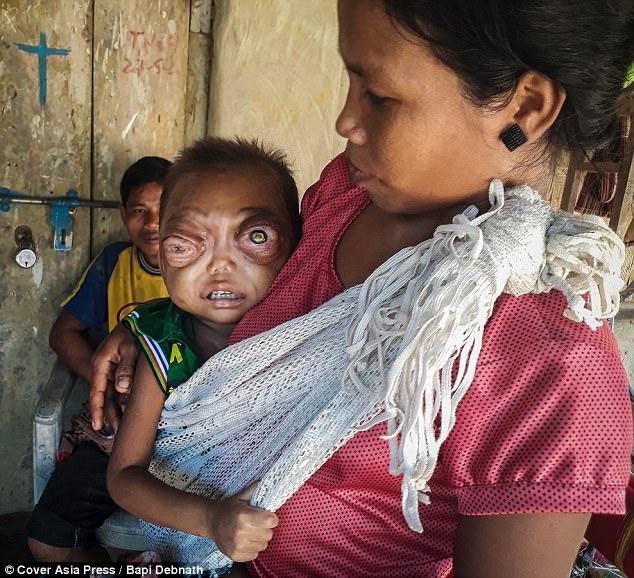 インド 赤ちゃん 眼 癌