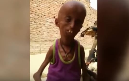 早老症 プロジェリア