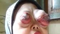 両眼 腫瘍