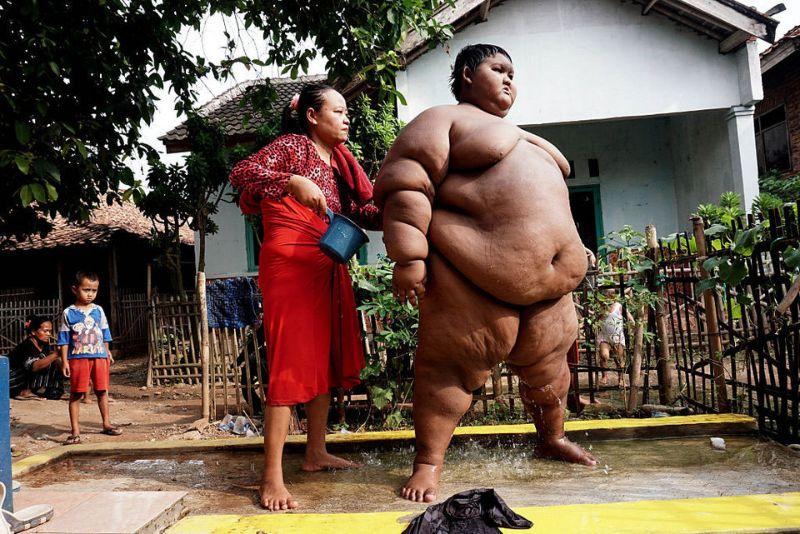 世界一 肥満児